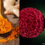 Woman Reverses Stage-3 Myeloma With Daily Curcumin Use